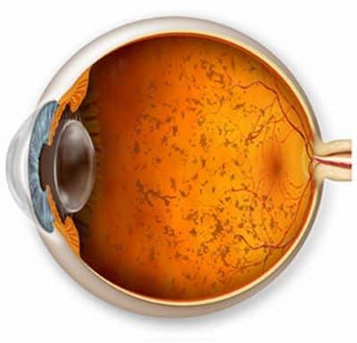fonte: http://www.koimano.com/ public/base/allegati /argus-bionico-intervento- occhio-pigmentosa-retinite-sight-vista%5B1%5D.jpg