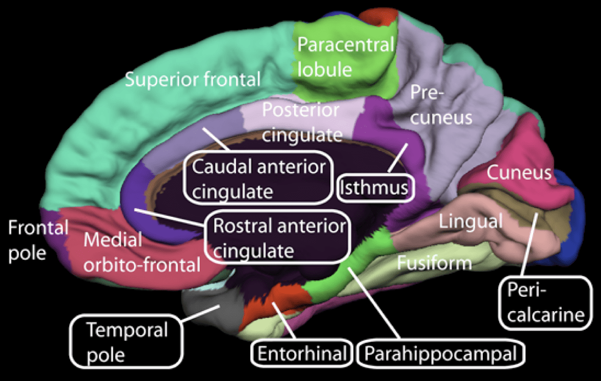 fonte: http://visionhelp.files.wordpress.com /2010/11/fusiform-gyrus-photo1.png