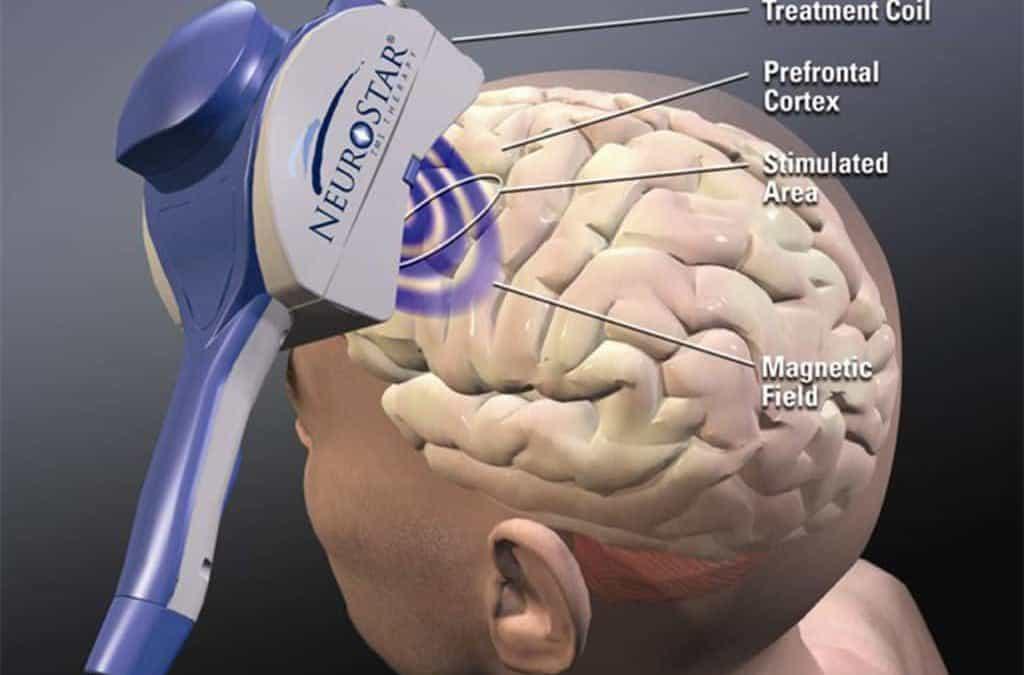 stimolazione magnetica transcranica