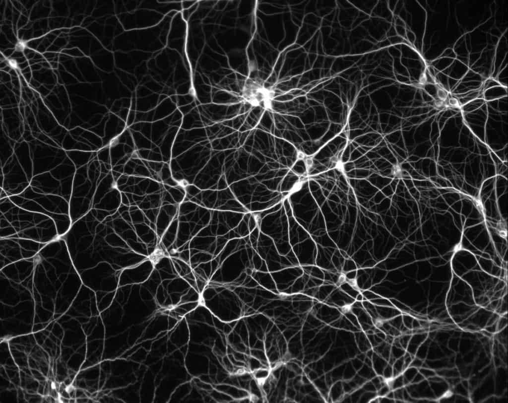 E se l'Alzheimer fosse un problema derivante dal calcare…?