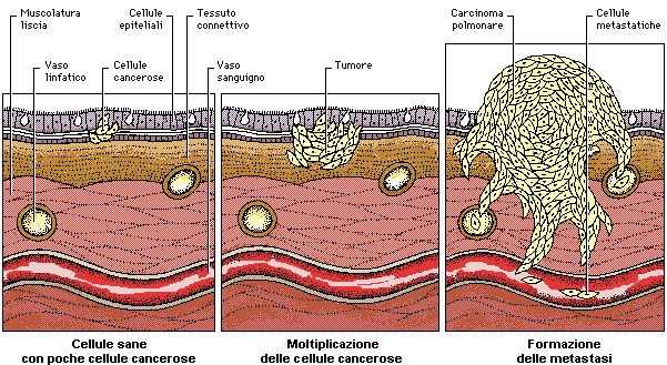 Neuroncologia clinica generale