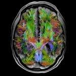 Penetrare l'ignoto, la grande sfida del cervello umano