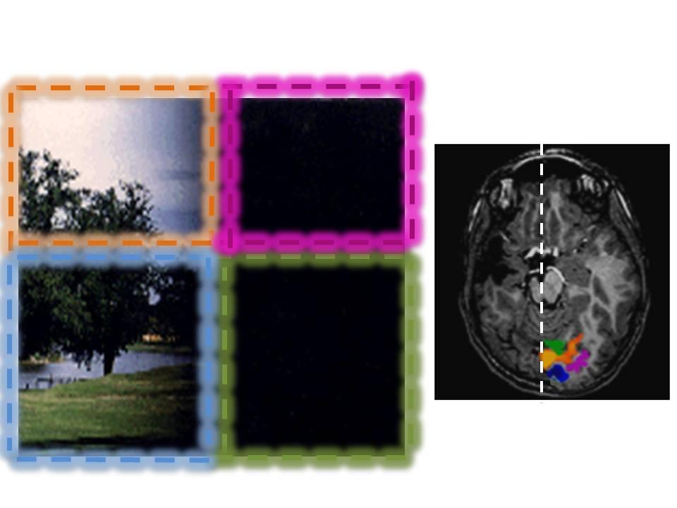 L'immagine mostra la visione di un soggetto con emianopsia destra (deficit nella visione di una metà del campo visivo).  I quattro rettangoli  colorati rappresentano i quattro quadranti del  campo visivo (arancione=quadrante superiore sinistro; azzurro=quadrante inferiore sinistro; viola=quadrante superiore destro; verde= quadrante inferiore destro). I diversi colori ci permettono di vedere quali aree della corteccia visiva si attivano alla Risonanza Magnetica Funzionale (fMRI) nel momento in cui uno stimolo viene presentato all'interno di uno dei quattro quadranti. Ciò che ci attendiamo nel soggetto normale è che il quadrante superiore e inferiore destro siano rappresentati nella corteccia visiva di sinistra, mentre il quadrante superiore e inferiore di sinistra siano rappresentati nella corteccia visiva di destra. Il soggetto riportato nella figura è un ragazzo che ha presentato una lesione cerebrale vascolare alla nascita, con interessamento dell'emisfero di sinistra e danneggiamento delle vie visive che afferiscono alla corteccia visiva dello stesso lato: in questo caso tutti i quattro campi visivi sono rappresentati nella stessa corteccia visiva, quella dell'emisfero destro non danneggiata,  che, grazie alla grande plasticità del sistema nervosa in età infantile, ha potuto compensare le funzioni dell'emisfero leso.