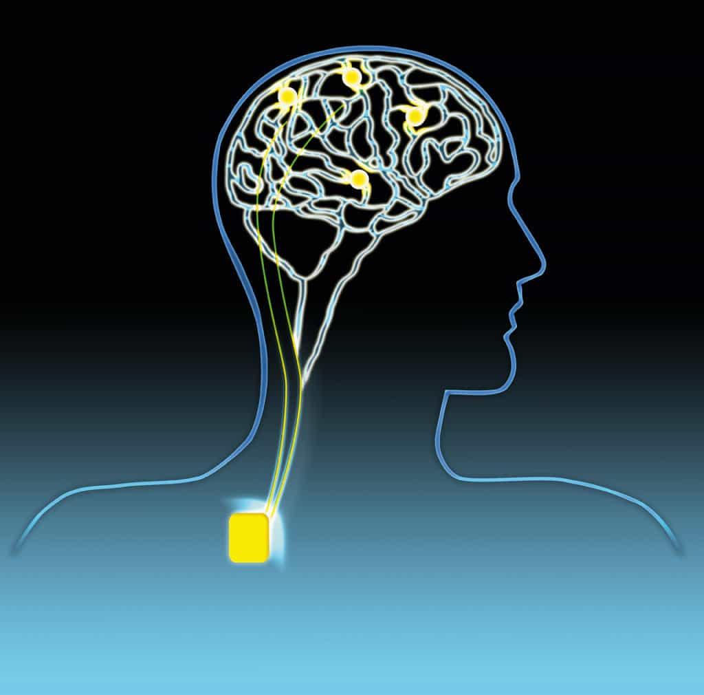 Una nuova prospettiva riabilitativa nella afasia: la stimolazione magnetica transcranica