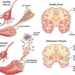 Ipotesi amiloide o ipotesi vascolare nella malattia di Alzheimer