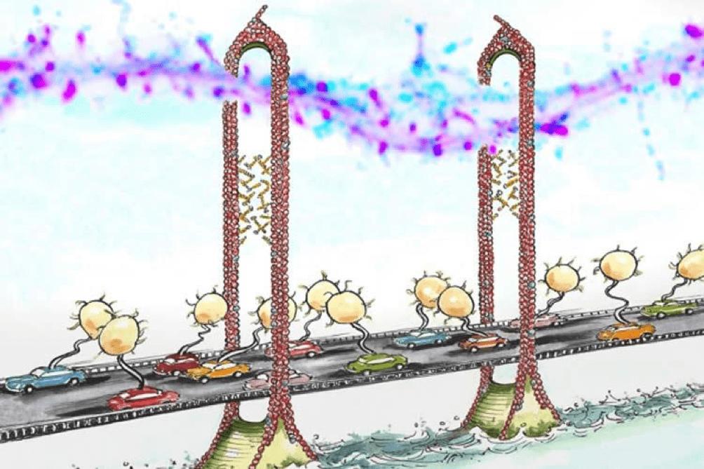 Come i neuroni perdono le loro connessioni