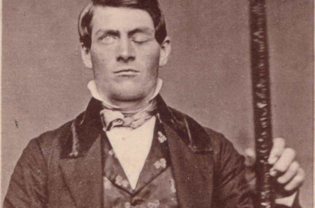 Sindrome Frontale Phineas Gage
