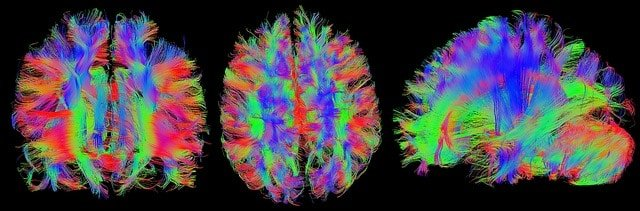 Brain imaging e schizofrenia