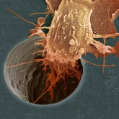 Melatonina, Cronobiologia e Cancro